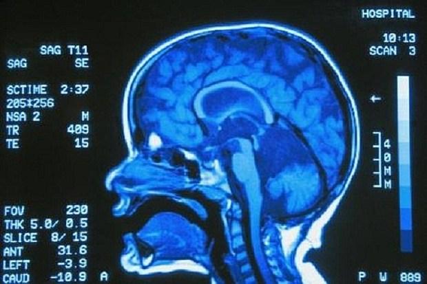 gehirn neurologie gott freier-wille